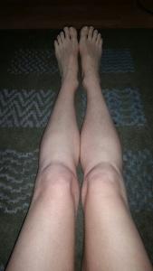 numb legs 4-14-15